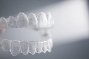 INVISALIGN | Riggs Family Dentistry